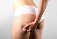 Cure Mediche per Combattere la Cellulite