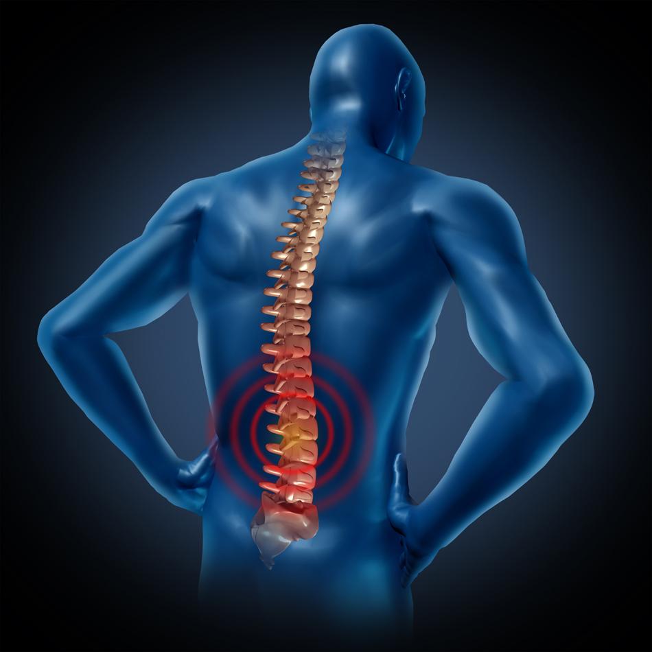 Cause del mal di schiena - Mal di schiena a letto cause ...